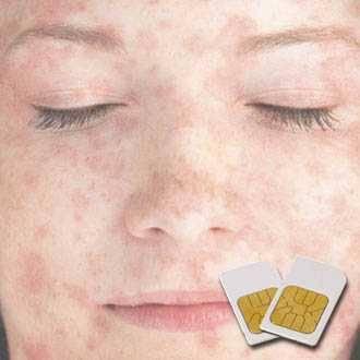 Chipkarte RICKETTSIEN für Zapper Diamond Shield nach Hulda Clark